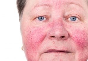 April is Rosacea Awareness Month!
